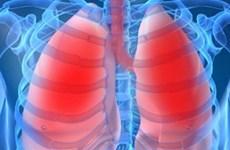 Ăn gì để giúp bạn tránh khỏi việc mắc bệnh phổi tắc nghẽn mãn tính