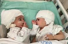 Israel: Phẫu thuật tách rời thành công cặp song sinh dính đầu