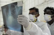 Mexico có ca tử vong đầu tiên trong năm vì virus H1N1