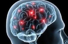 Bệnh sa sút trí tuệ mạch não đang ngày càng phổ biến ở Việt Nam