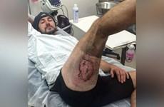 Bị bỏng mất cả mảng da đùi vì iPhone 6 phát nổ trong túi quần