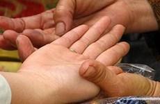 Một phụ nữ ở Hà Nội tử vong sau 3 tháng nhờ thày cúng... chữa trị