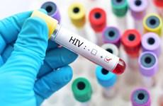 Hà Nội: 30% người nhiễm HIV chưa biết mình nhiễm bệnh