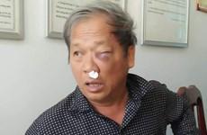 Hội Nhà báo đề nghị xử lý vụ hành hung phóng viên TTXVN và VTV