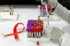 Thử nghiệm thuốc chống phơi nhiễm HIV của Mỹ cho kết quả khả quan