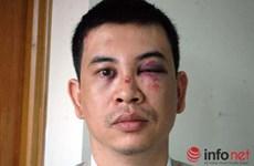 Khởi tố 7 bị can trong vụ án cố ý gây thương tích cho 2 luật sư