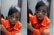Lào Cai xử lý nghiêm vụ giáo viên đánh học sinh bầm tím mặt