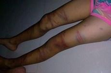 Bé gái lớp 3 phải nhập viện cấp cứu do nghi bị bố đẻ bạo hành