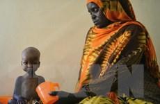 Gần 1,4 triệu trẻ châu Phi sẽ chết đói nếu không được cứu trợ khẩn