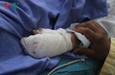 Pin điện thoại phát nổ khi sạc, một bé trai bị dập nát bàn tay