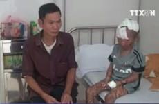 Yên Bái: Phát hiện bệnh nhân bị vảy cá bẩm sinh hiếm gặp