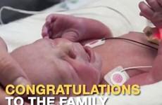 Mỹ chào đón em bé đầu tiên sinh ra từ bà mẹ được ghép tử cung