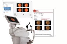 Sử dụng trí tuệ nhân tạo chẩn đoán bệnh về mắt do tiểu đường