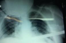 Lâm Đồng: Cứu sống bệnh nhân bị thanh sắt đâm xuyên thấu lồng ngực