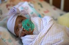 Sức sống phi thường của em bé sơ sinh nhỏ nhất thế giới