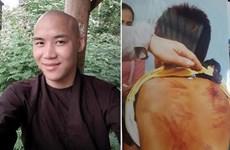 Bình Thuận: Bé trai nghi bị bạo hành sau khi tham dự 'khóa tu'