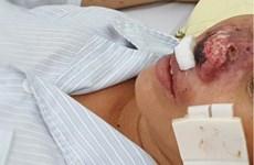 Bệnh truyền nhiễm dễ gây tử vong Whitmore tái xuất hiện ở Việt Nam