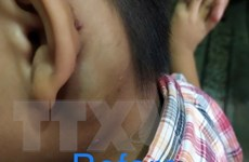 Điều trị cho bệnh nhi bị u máu dạng dị dạng tĩnh mạch sau tai