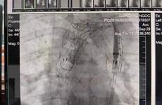 TT-Huế: Phẫu thuật thành công bệnh nhân bị bóc tách động mạnh chủ