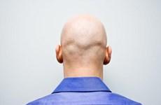Ô nhiễm không khí có thể gây rụng tóc và hói đầu