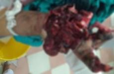 Học chế pháo trên YouTube, học sinh lớp 9 nhập viện do đa chấn thương