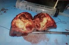Bệnh viện TW Huế phẫu thuật cắt gan lớn thành công cho hai bệnh nhi