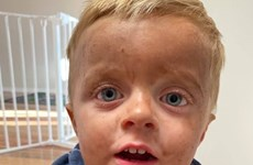 Cậu bé mang làn da nhem nhuốc vì nhầm thuốc nhuộm da với xà phòng