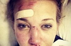 Olympic Sochi: Nữ vận động viên 18 tuổi người Anh bất tỉnh