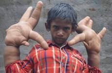 """Cậu bé 8 tuổi người Ấn Độ bị xa lánh vì có đôi tay """"khổng lồ"""""""
