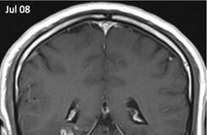 Sán dây dài 1cm sống trong não người đàn ông trong suốt 4 năm