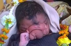 """Bé gái Ấn Độ có """"vòi voi"""" trên mặt được thờ phụng như thần"""