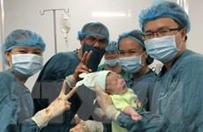 Quảng Trị: Các bác sỹ kịp thời cứu sống thai nhi bị sa dây rốn