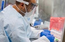 Thử nghiệm vắcxin chống COVID-19 của Italy cho kết quả tích cực