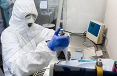 Tập đoàn công nghệ Nga xét nghiệm virus SARS-CoV-2 miễn phí