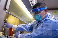 Xét nghiệm kháng thể virus không đủ tin cậy trong phỏng đoán miễn dịch