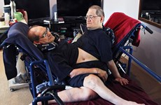 Cặp song sinh dính liền thân cao tuổi nhất thế giới qua đời