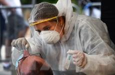 Ai có thể miễn nhiễm với virus SARS-CoV-2 gây dịch bệnh COVID-19?