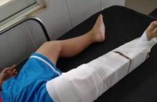 Tạm đình chỉ công tác giáo viên làm bé trai 3 tuổi gãy xương đùi