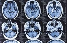 Nghiên cứu: COVID-19 có thể để lại di chứng ở não người bệnh