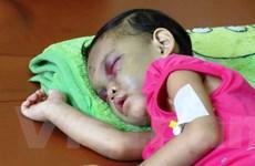 [Photo] Nỗi đau xót lòng vụ bé gái bị bạo hành ở Bình Dương