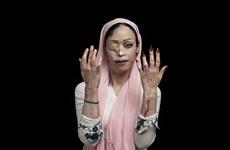 [Photo] Xót xa thân phận của những người phụ nữ bị tạt axít