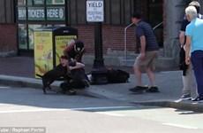 Người chủ vật lộn với con pitbull hung dữ để bảo vệ chú chó cưng