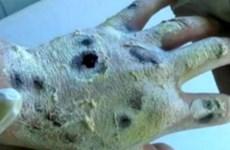 """Cảnh báo về tác hại loại """"ma túy cá sấu"""" nguy hiểm nhất thế giới"""