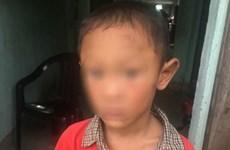 Bé trai 5 tuổi bị dì ruột đánh đập dã man gây thương tích nặng