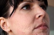 Những mẹo hay và dễ làm giúp bạn thu nhỏ lỗ chân lông