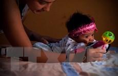 Cuba xác nhận ca nhiễm virus Zika thứ 3 lây nhiễm từ Venezuela