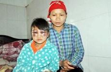 Lào Cai: Buộc thôi việc cô giáo đánh học sinh bầm tím mắt