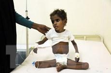 LHQ kêu gọi cứu trợ cho 8,4 triệu người cận kề nạn đói ở Yemen