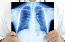 Phát hiện hormone giúp hóa trị điều trị ung thư phổi đạt hiệu quả cao