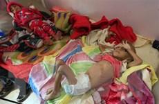 Hơn 85.000 trẻ em chết vì đói và bệnh tật tại Yemen trong 3 năm qua